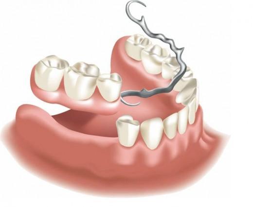 Недорогое протезирование зубов в стоматологическом центре «Эксперт»!
