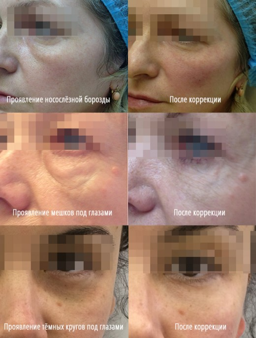 Тёмные круги под глазами: причины появления, лечение и результаты