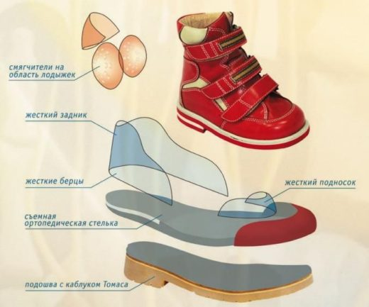 Как подобрать ортопедическую обувь для детей в Новосибирске и не только