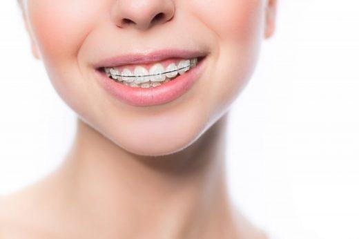 Акция: стоматологический центр «Зууб» снижает цены на сапфировые брекеты