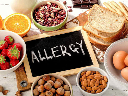 Причины и симптомы пищевой аллергии